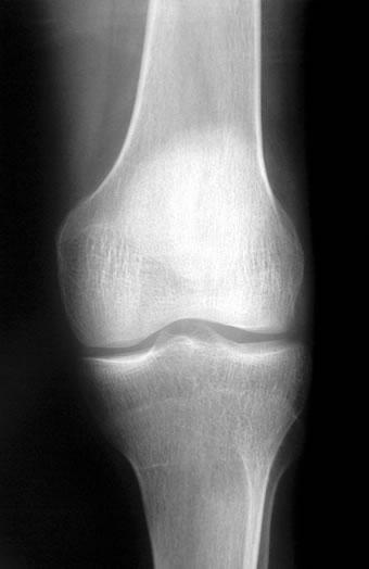 gefahren durch röntgenstrahlen